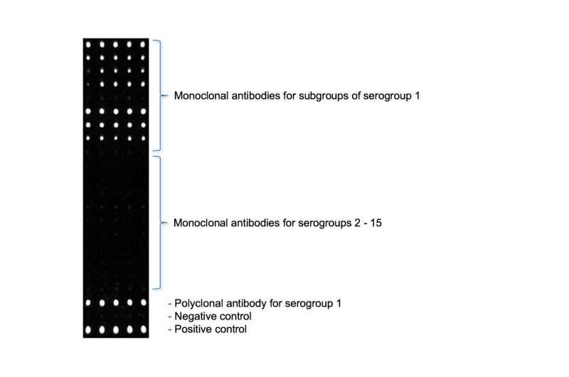 Measurement chip detects Legionella