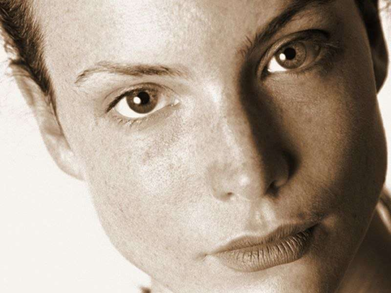 Newly designed pulsed-dye laser found effective for rosacea