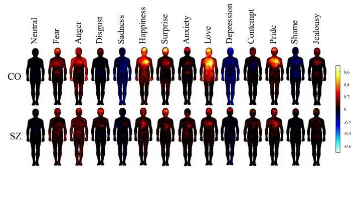 People with schizophrenia experience emotion differently from others, 'body maps' show