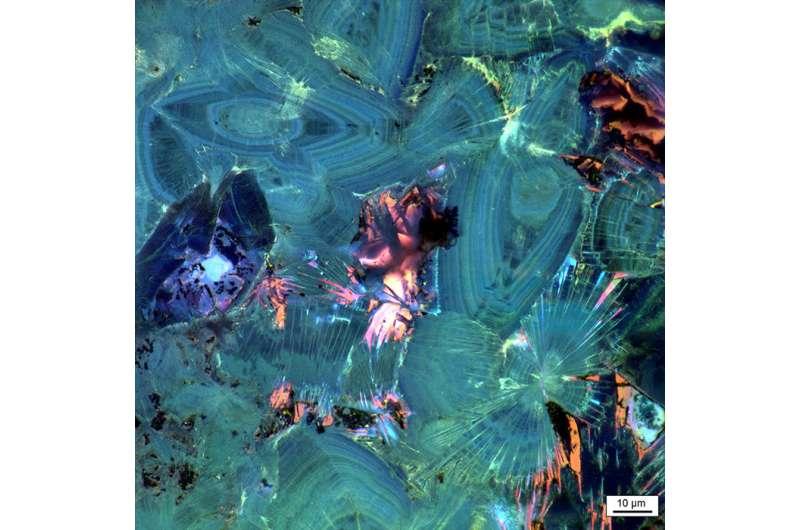 Study: Kidney stones have distinct geological histories