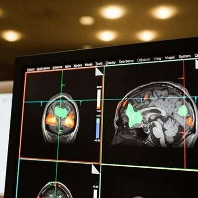 The brain combats dementia by shifting resources