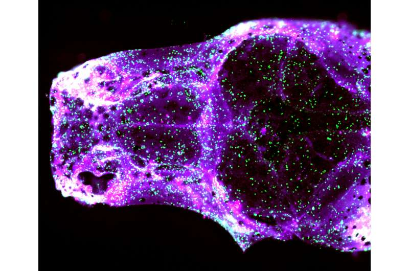 Zebrafish make waves in our understanding of a common craniofacial birth defect