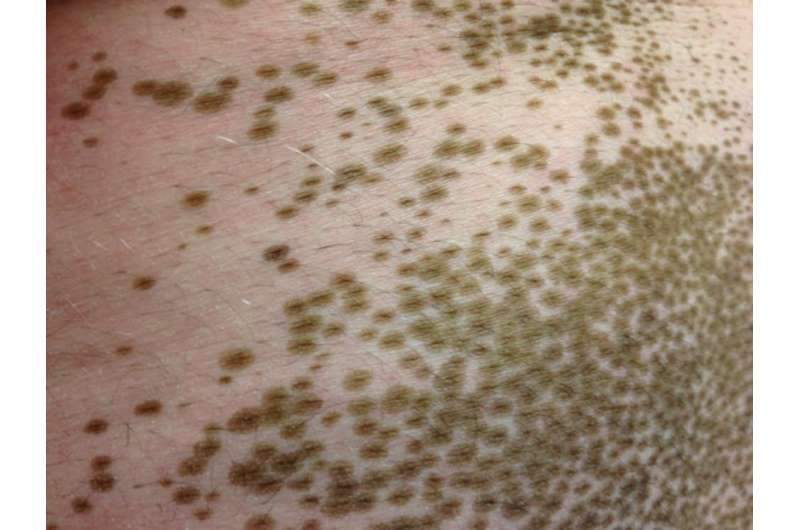 New treatment in the works for disfiguring skin disease vitiligo