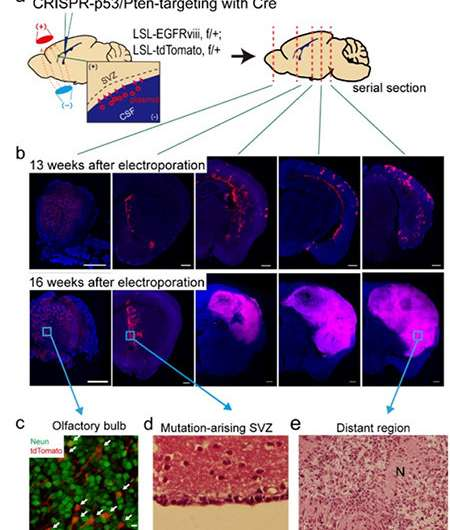 A breakthrough for understanding glioblastoma—origin cells for deadly brain tumors identified
