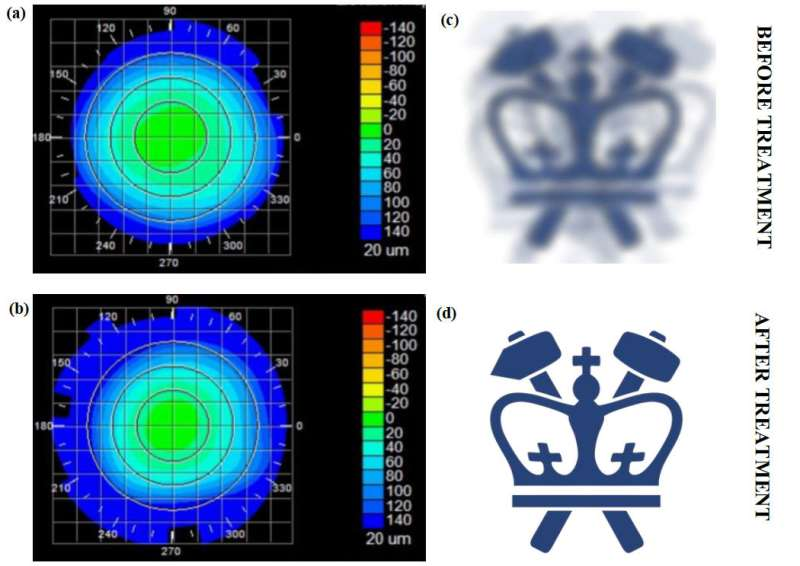 Columbia engineers invent a noninvasive technique to correct vision