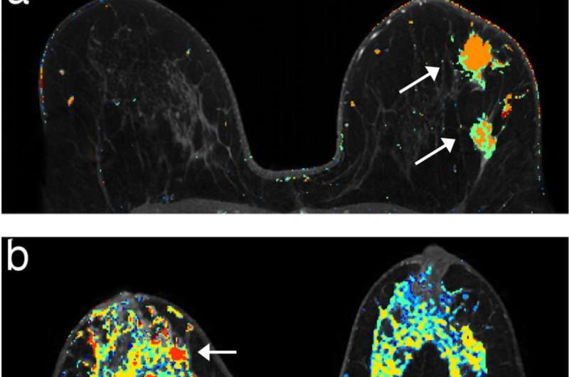 For women with genetic risk, twice-a-year MRI beats mammograms