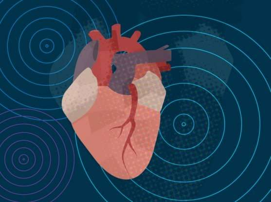 Massive study sheds light on the genetic roots of atrial fibrillation