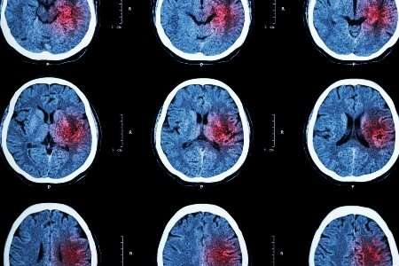 New treatment option for 'wake-up' stroke patients