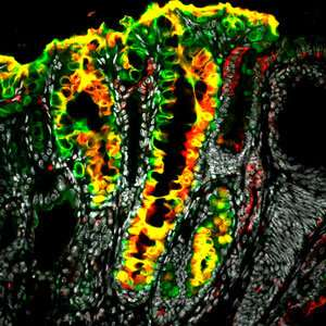 Stem cell reserves found in the stomach have implications for the genesis of gastric cancer