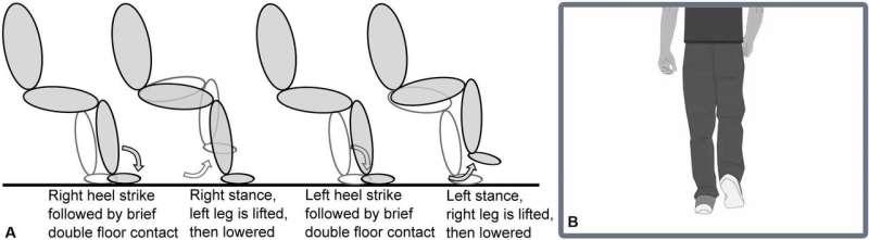 Brain activity alternates while stepping