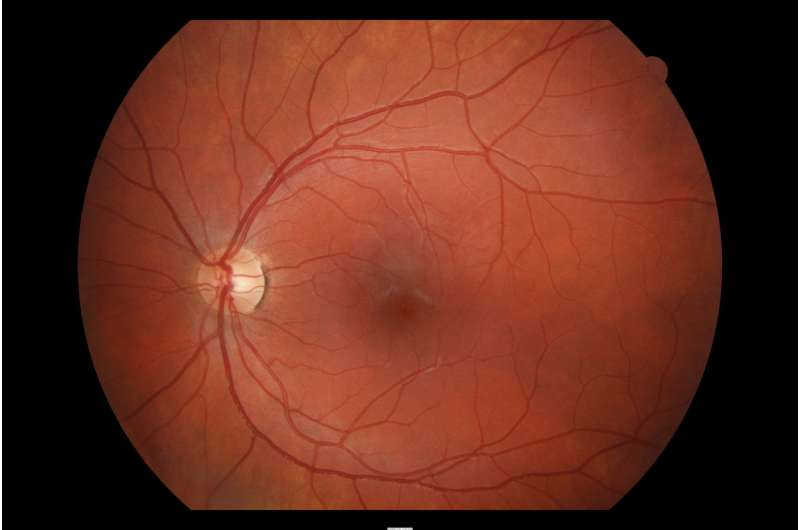 New research: Eyes of adolescents could reveal risk of cardiovascular disease