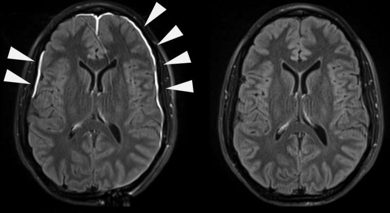 NIH scientists watch the brain's lining heal after a head injury
