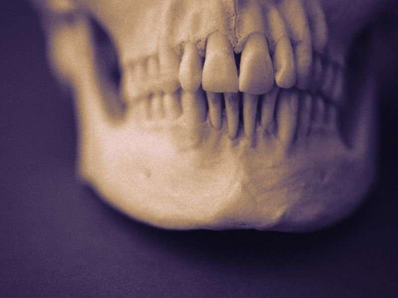 3-D-printed templates aid mandibular fracture repair