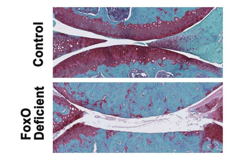 TSRI scientists find key proteins control risk of osteoarthritis during aging