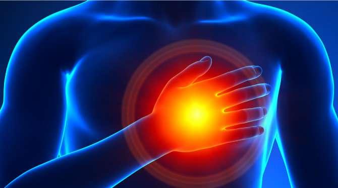 Researchers investigate non-obstructive heart attacks found more often in women