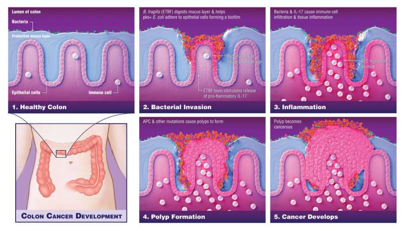 Bacteria play critical role in driving colon cancers