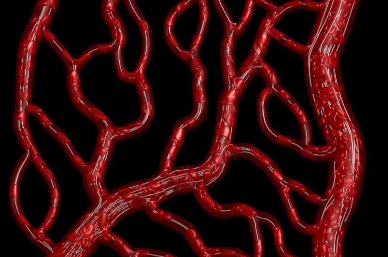 The vessel not taken: Understanding disproportionate blood flow
