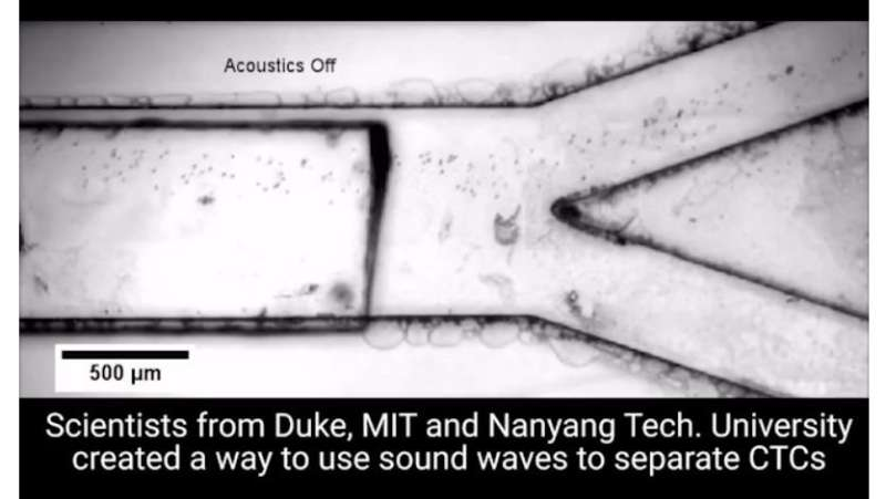 Acoustic microfluidic platform gently and quickly separates circulating tumor cells from blood samples