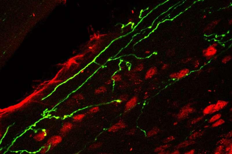 Novel botulinum toxin compound relieves chronic pain