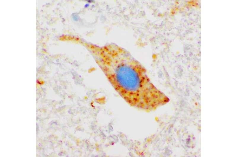 ALS disease mechanism discovered