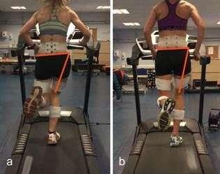 How poor technique contributes to majority of running injuries