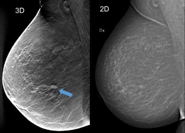 3-D mammography detected 34% more breast cancers in screening