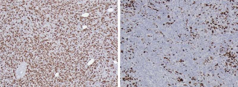 Suppression of DKK3 protein thwarts pancreatic tumor progression and prolongs survival
