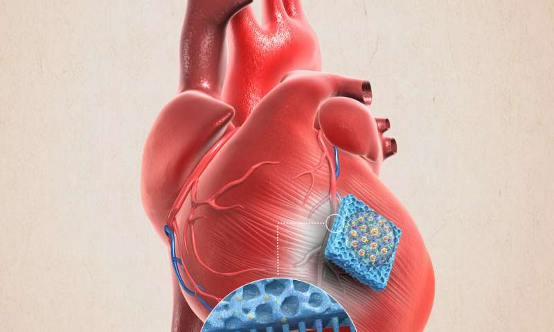 **Microneedle patch shows promise as a means for repairing muscle after heart attack