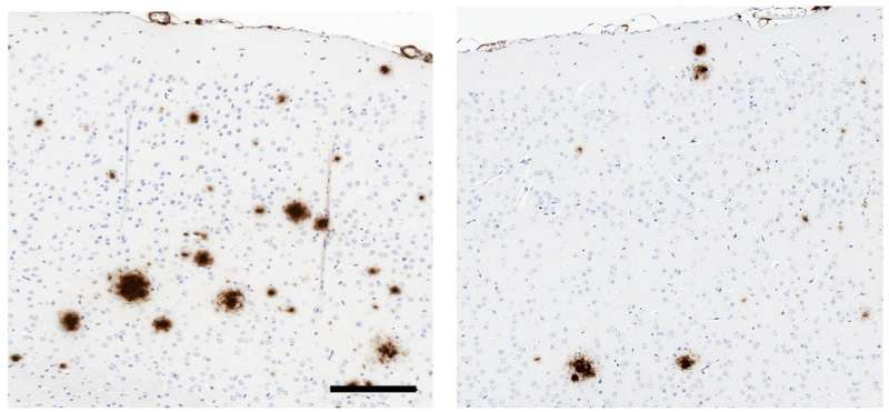 Researchers identify new potential biotherapy for Alzheimer's disease