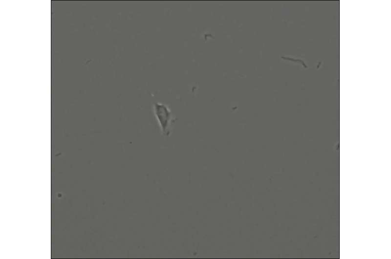 Researchers identify human skeletal stem cells