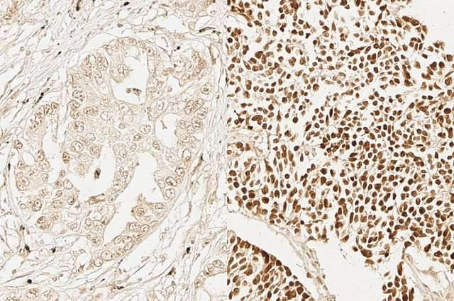 Researchers find adult stem cell characteristics in aggressive cancers from different tissues