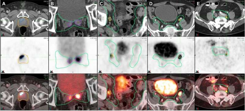 Prostate cancer radiotherapy more precisely targeted with nuclear medicine imaging