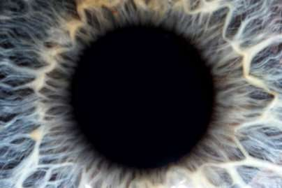 Research finds orbital radiotherapy should not be used to treat thyroid eye disease