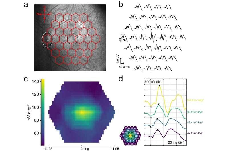 Revealing the retina: Graphene corneal contact lens provides robust, irritation-free topographic electroretinography