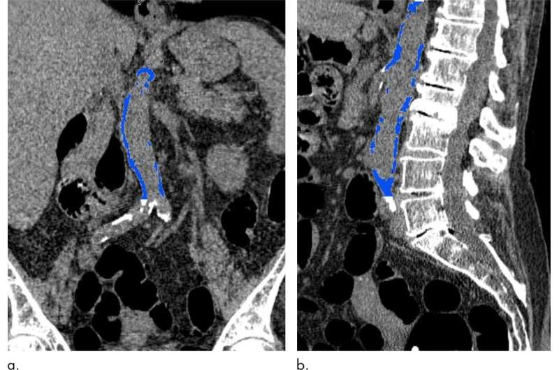 Abdominal aortic calcification may signal future heart attack