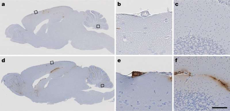 Amyloid pathology transmission in lab mice and historic medical treatments