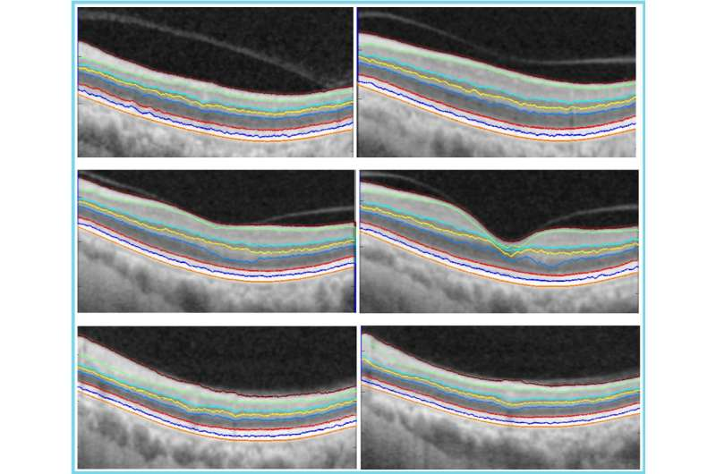 Award winning algorithm could improve accuracy and speed of diagnosis of retinal disease