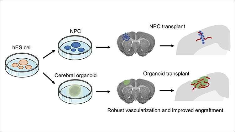 Better way to transplant human stem cells