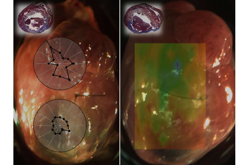 Biomechanical mapping method aids development of therapies for damaged heart tissue