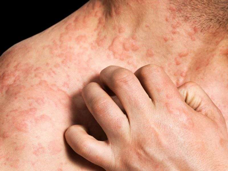 Birch pollen-related foods can trigger dermatitis reactions