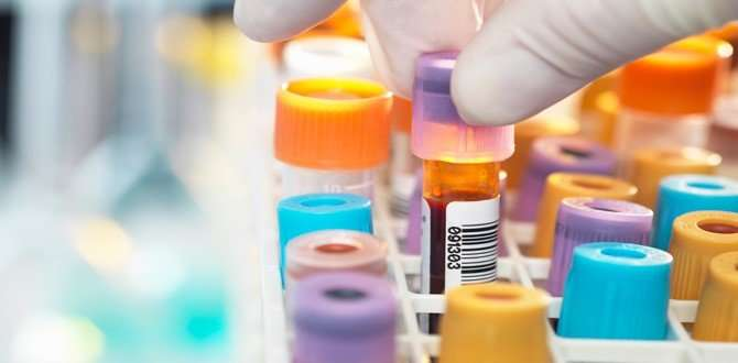 Blood test could offer life-and-death clues for African-American diabetics
