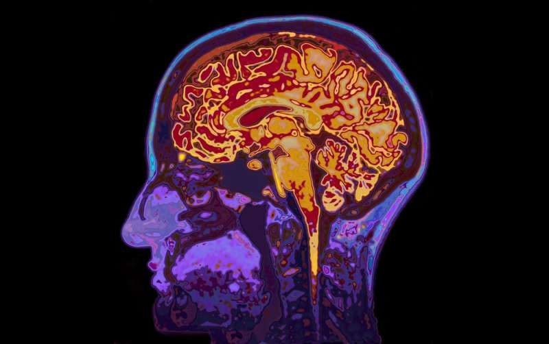 Brain implant could stop epilepsy seizures