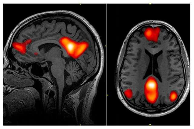 Brain scan and artificial intelligence could predict whether OCD will improve with treatment