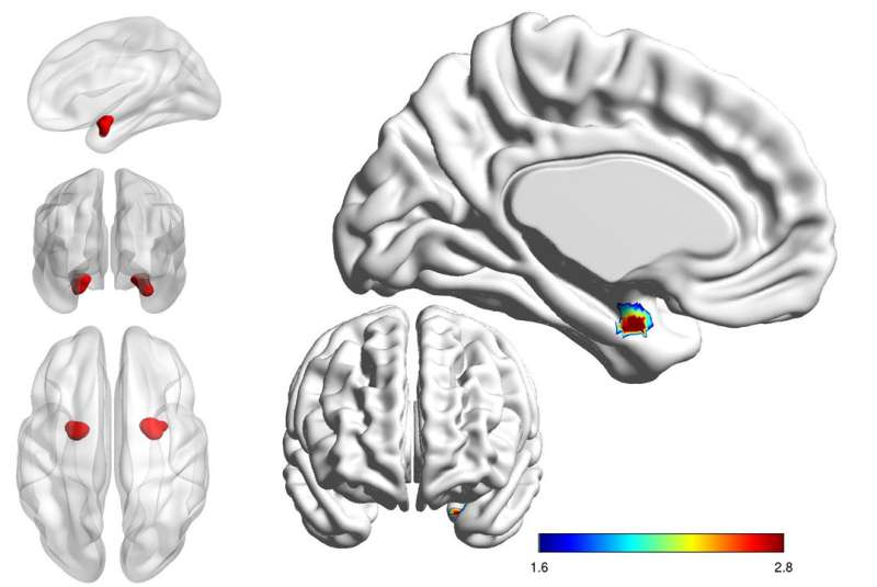 Brain scans could distinguish bipolar from depression