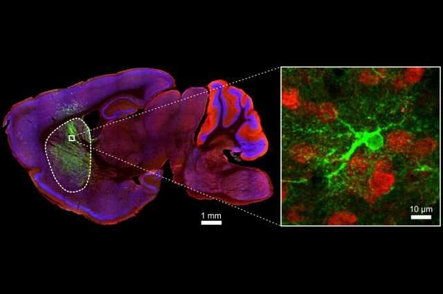Brain's support cells may play a central role in repetitive behaviors related to OCD