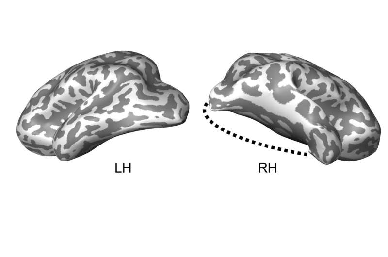 Case study: Child's lobectomy reveals brain's ability to reorganize its visual system