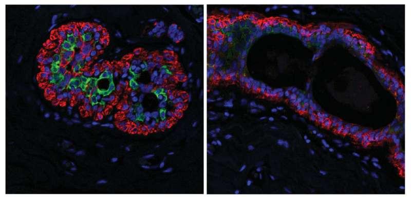 Changes in breast tissue increase cancer risk for older women