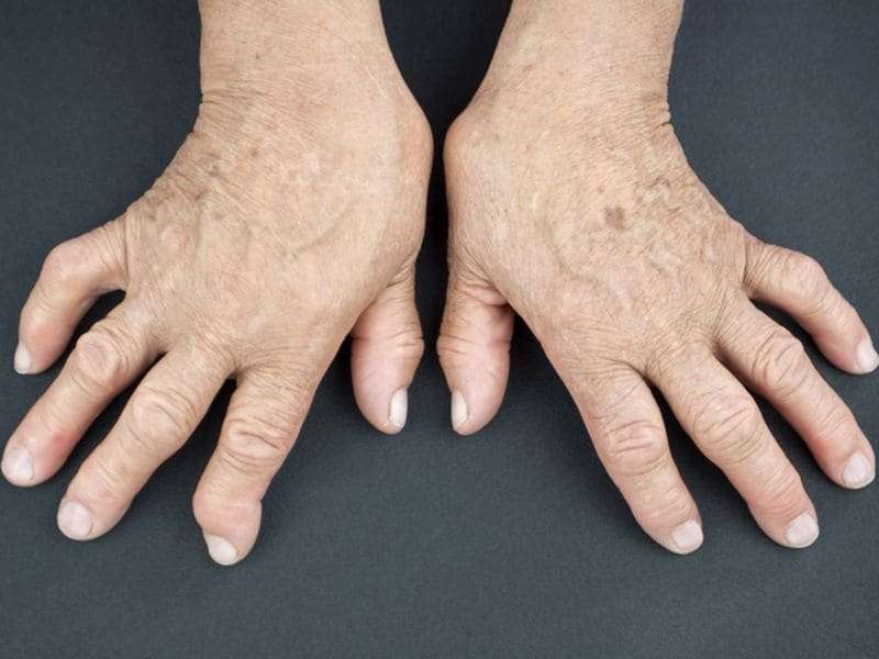 Combo therapy not needed if low RA disease activity achieved