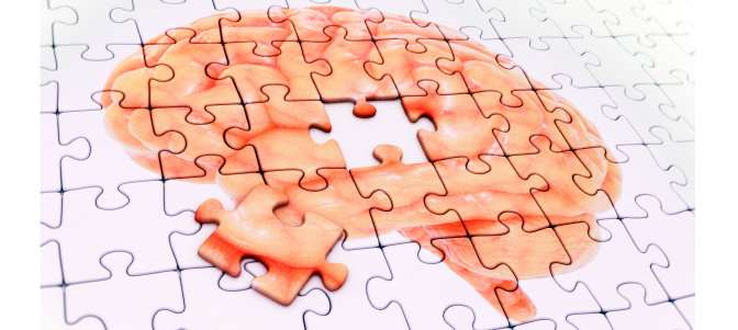 Congenital heart defects linked to increased risk of dementia