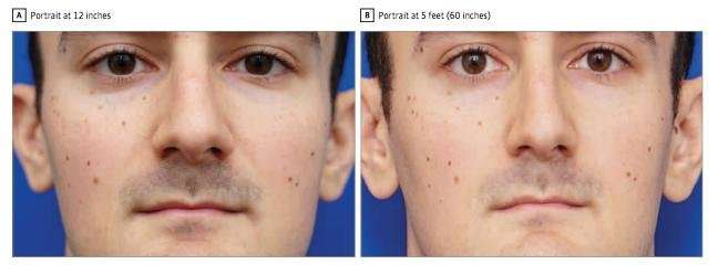 Distortive effects of short distance photographs on nasal appearance: The selfie effect